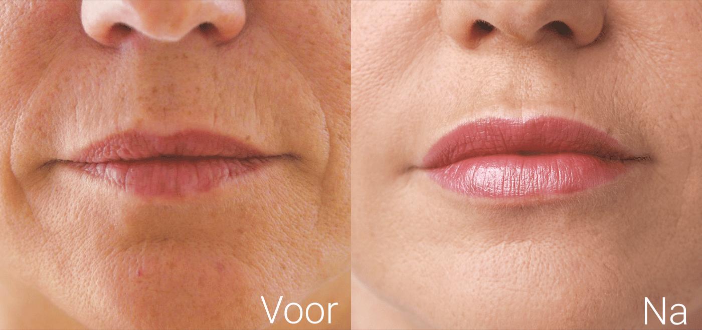 Resultaat filler behandeling neus lippenplooi en vollere lippen bij vrouw voor en na
