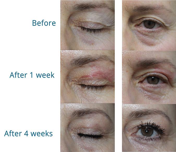 SkinMedix Plexr behandeling bovenoogleden