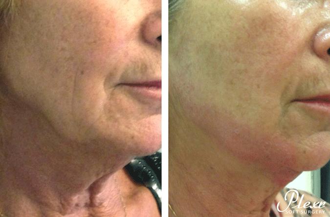 SkinMedix Plexr behandeling kaaklijn rimpels
