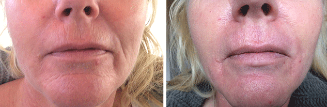 SkinMedix Plexr behandeling lippen neus plooi rimpels