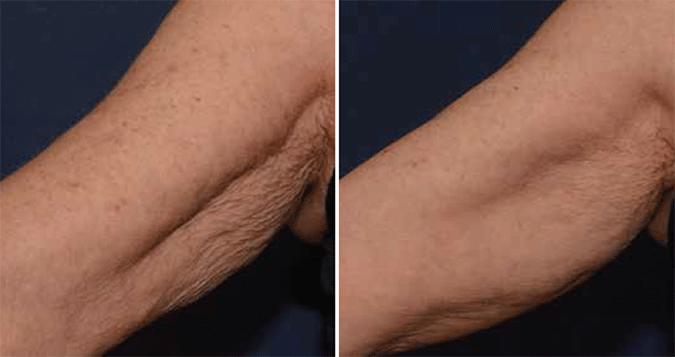 SkinMedix Filler Behandeling Profhilo Filler
