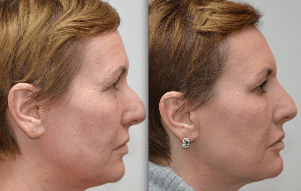 Resultaat filler hyaluronzuur vrouw voorhoofdrimpels neuscorrectie verzachten contouren voor en na
