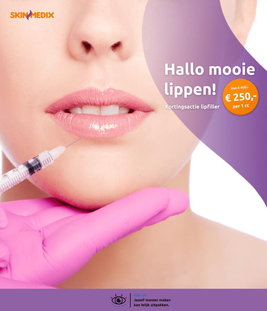 Lip filler behandeling korting SkinMedix Rilland Bergen op Zoom