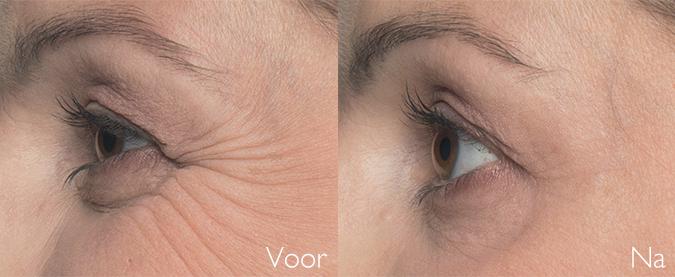 botox behandeling kraaienpootjes SkinMedix