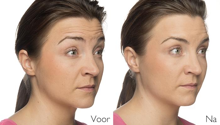 botox behandeling voorhoofdrimpels Skinmedix