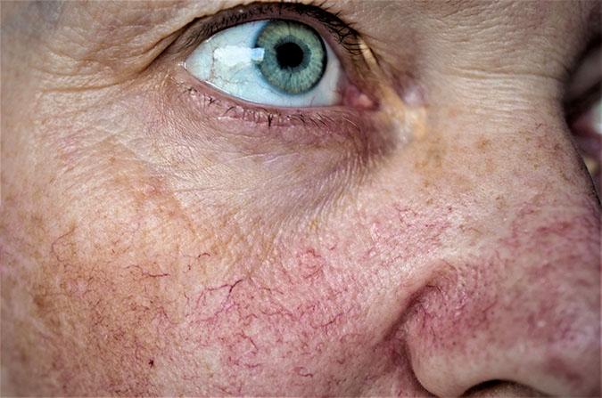 Couperose behandeling SkinMedix