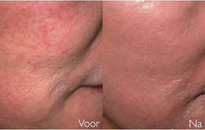 Voor en na behandeling rosacea couperose op wang SkinMedix