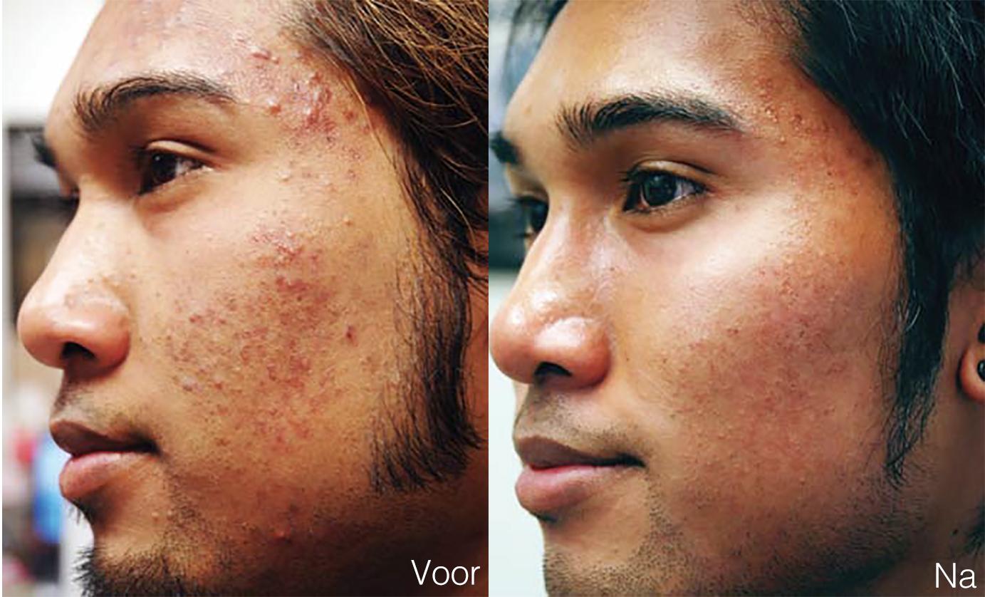 Acné behandeling gezicht man