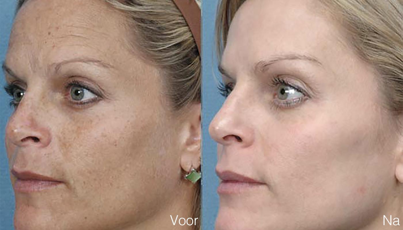 Pigmentvlek verwijderen gezicht vrouw